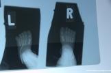 Children Radiograph