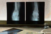 Orthopaedic X-Rays
