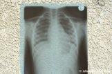 X-Ray Child