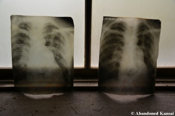 Very Old X-rays